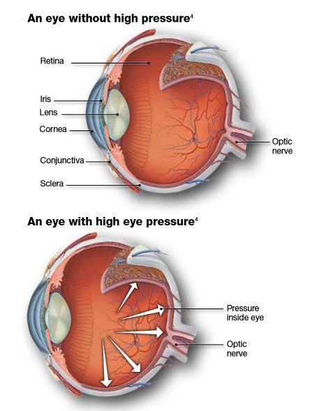 What causes high eye pressure? - powerpointban.web.fc2.com