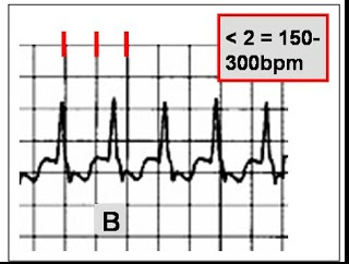 175 best images about Nursing (Cardiovascular EKG/ECG) on