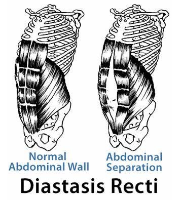 124 best images about Diastasis Recti Repair on Pinterest