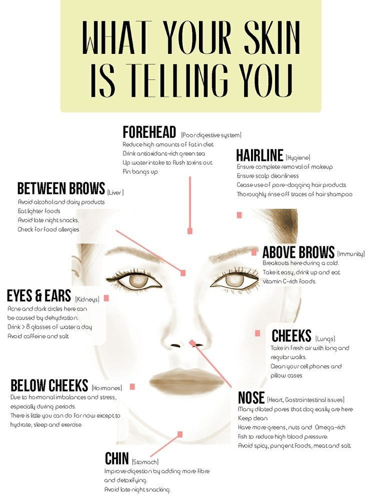 hormonal acne diagram john deere 4430 wiring 25+ best ideas about face mapping on pinterest | reading, chinese reading and pimples ...