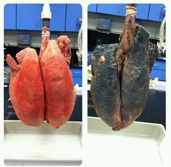 Image result for damaged lung cancer