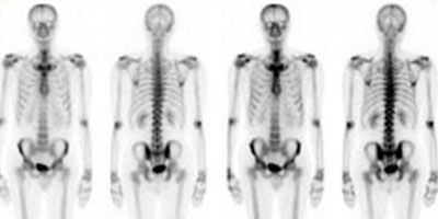 25+ best ideas about Nuclear medicine on Pinterest