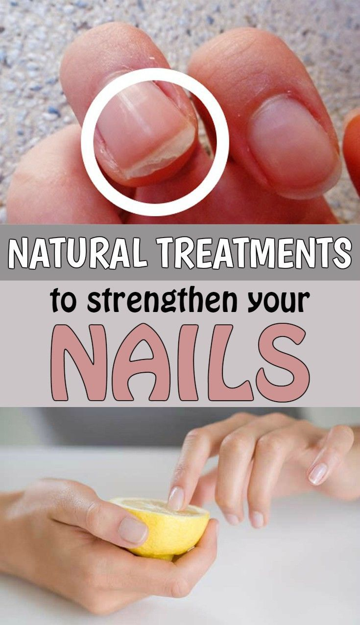 1000 ideas about Strengthening Nails on Pinterest  Nail