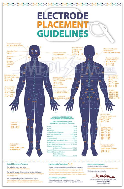 10 best images about TENS Unit placement charts on Pinterest   Plugs. Click! and Muscle