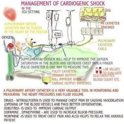 Cbc Lab Value Diagram Pontiac G6 Speaker Wiring Management Of Cardiogenic Shock | Nursing Student Pinterest Cen Review Aides ...
