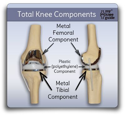 11 best images about Total knee replacement on Pinterest ...
