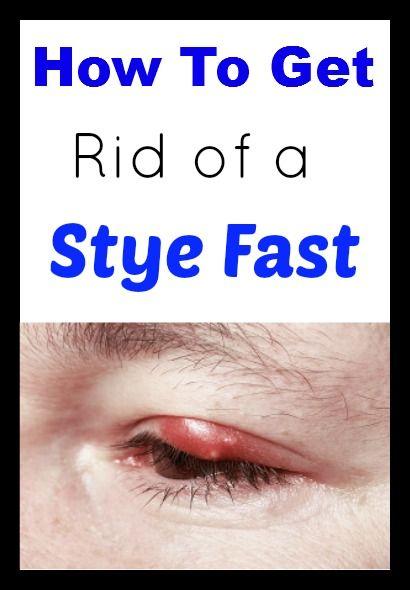 13 best Stye Remedies images on Pinterest