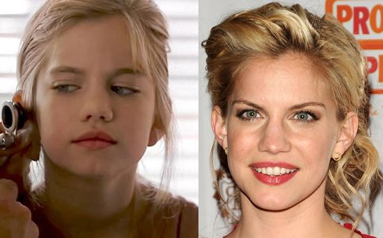 Anna Chlumsky Nose Job Plastic Surgery Before And After