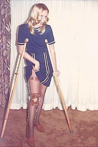 She has the right hardware  leg braces devotee
