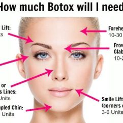 Blank Face Diagram Botox 12 Lead Electric Motor Wiring How Much Will I Need? Vitanovu Med Spa Http://vitanovu.com/botox/ | Botox! Pinterest ...