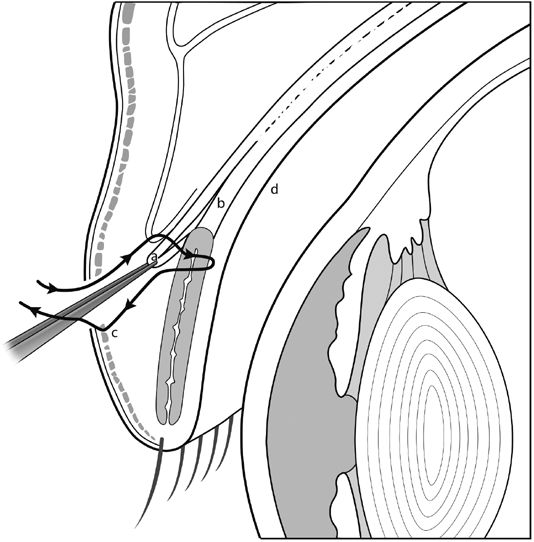 Blepharoptosis Correction: Levator Aponeurosis–Müller