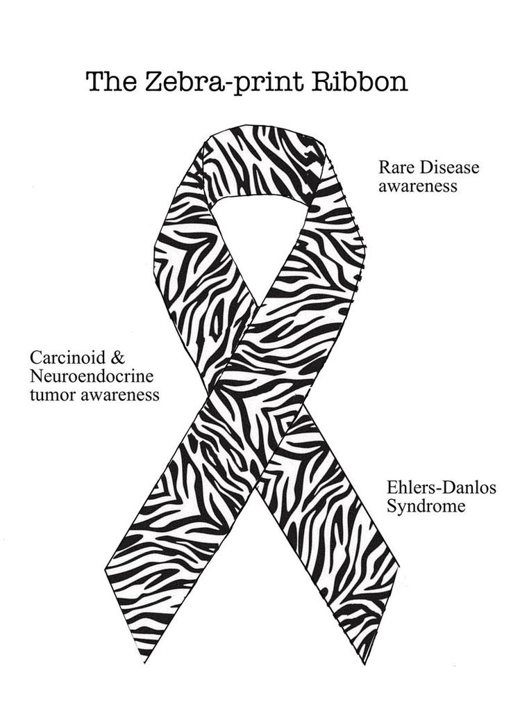 591 Best images about I have Ehlers Danlos Syndrome on