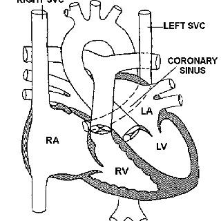 Persistent Left SVC • Absent innominate (bridging) vein
