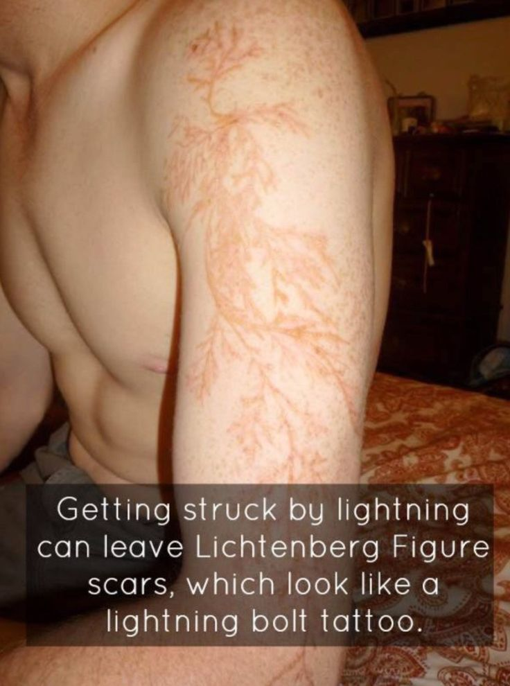 The 25+ best ideas about Struck By Lightning Scar on