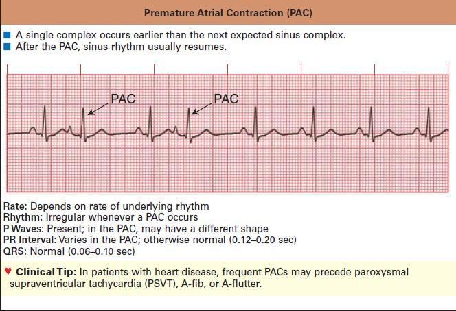 25 best ideas about Sinoatrial Node on Pinterest  Cardiac nursing Heart anatomy and Diagram