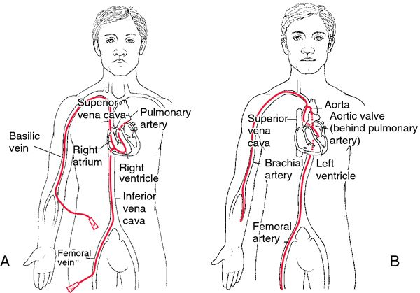 25+ Best Ideas about Cardiac Catheterization on Pinterest