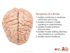 43 best images about Stroke on Pinterest | Heart disease, Health and Studentcentered resources