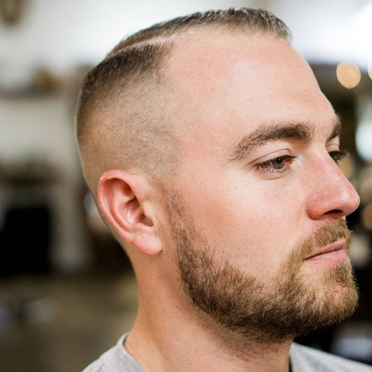 25 Best Ideas About Hairstyles For Balding Men On Pinterest