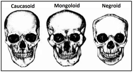 Skull chart showing the different skull types of the three