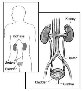 17 Best ideas about Medullary Sponge Kidney on Pinterest