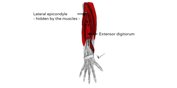 Extensor Digitorum Muscle Pain And Trigger Points