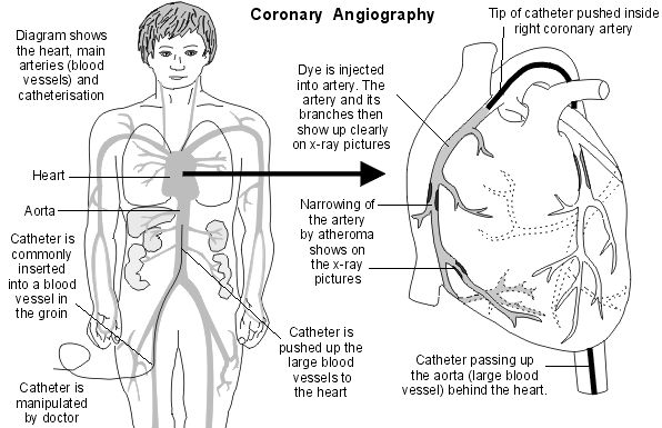 17 Best images about Nursing (Cardiovascular) on Pinterest