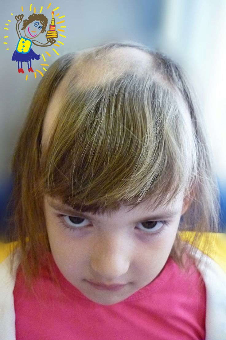 Alopecia Areata In Children Painful Childhood Alopecia