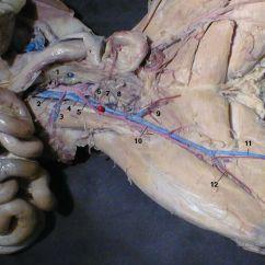Pig External Anatomy Diagram Comcast Cable Box Setup 1. Abdominal Aorta 2. Inferior Vena Cava 3. Right Iliolumbar Artery & Vein 4. Common Iliac ...