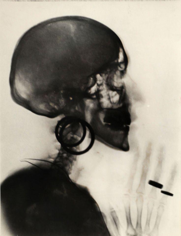 Risultati immagini per Meret Oppenheim, Röntgenaufnahme des Schädels