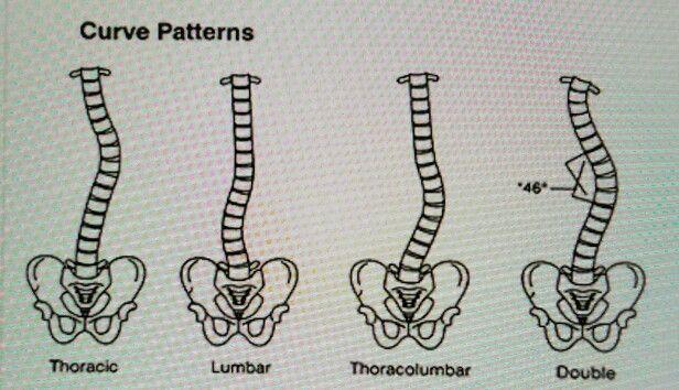 Spine Spina Bifida Awareness