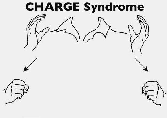 19 best ideas about CHARGE Syndrome on Pinterest