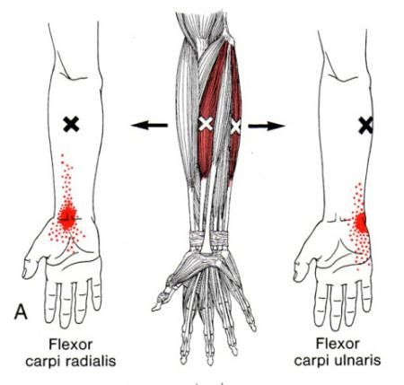 17 Best images about Trigger Points on Pinterest