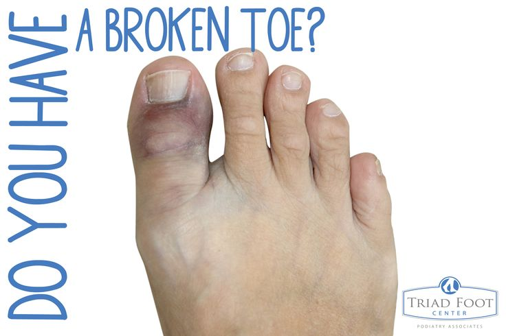 160 Best Images About Foot Conditions On Pinterest