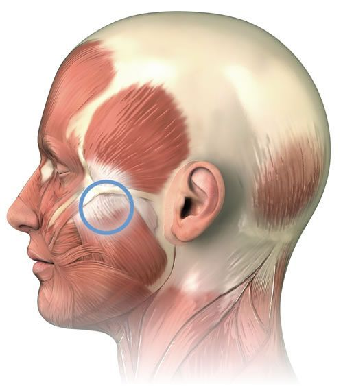 botox facial muscle diagram ford s max wiring how to find and massage perfect spot #7, a common trigger point in the masseter of ...