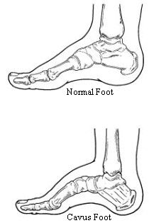 34 best Charcot Marie Tooth images on Pinterest