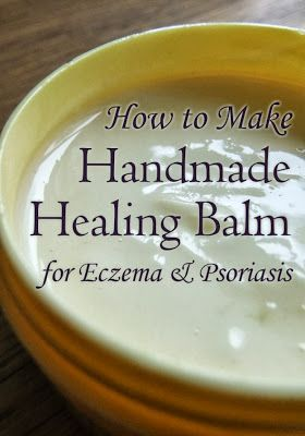 How to Make Handmade Healing Balm for Eczema and Psoriasis – using Neem oil, a fantastic natural remedy for skin complaints