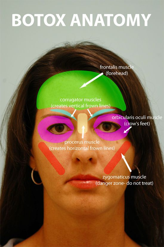 botox facial muscle diagram overhead crane wiring 25+ best ideas about injection sites on pinterest | face injections, head muscles and ...
