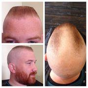 """horseshoe"" flattop haircut flattops"