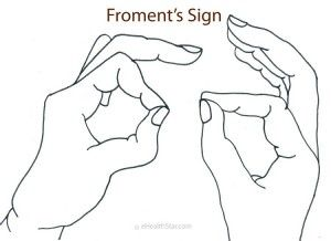 Froment's sign speaks for a damage of the ulnar nerve in