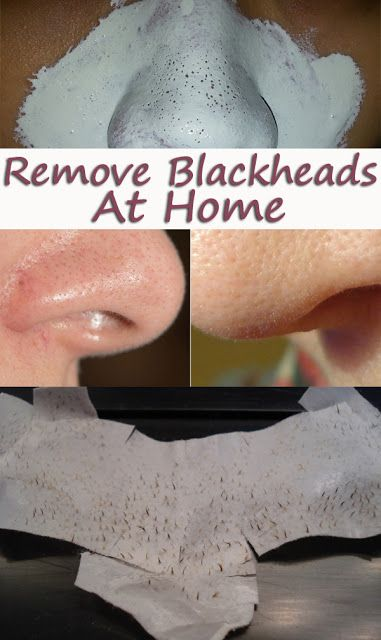 Get rid of blackheads How to get rid and How to get on ...