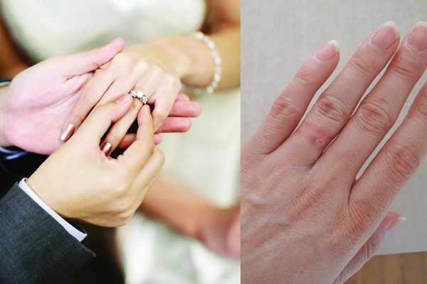 Cool Wedding Ring 2016 Allergy to wedding ring nickel