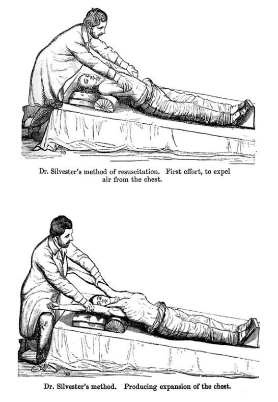 Henry R. Silvester's two-part method of resuscitating