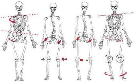 Four types of common structural misalignments: torso and
