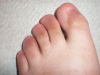 no toenails... | Really? | Pinterest | Nail photos, Nails ...
