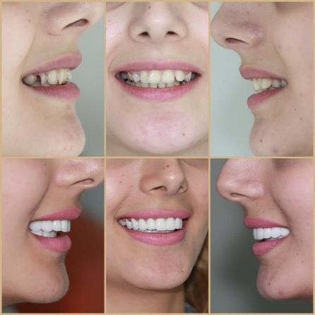 Resiko Mahkota Gigi- Global Estetik Dental Care