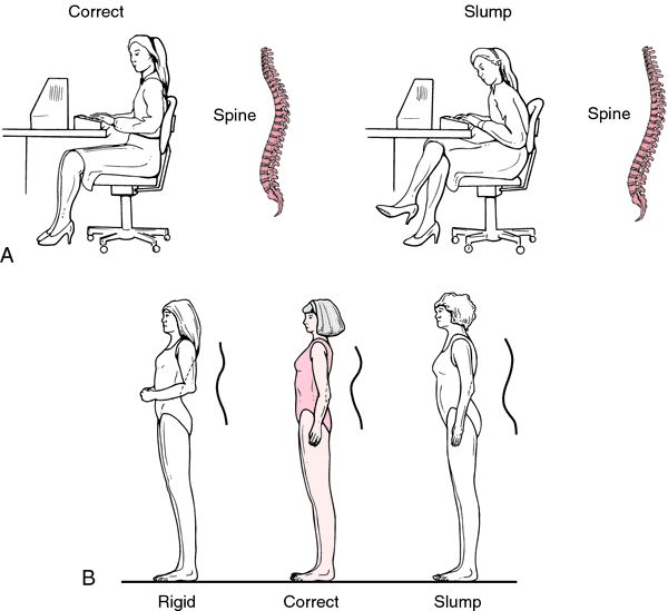 posture stance assessment  Google Search  Anatomy