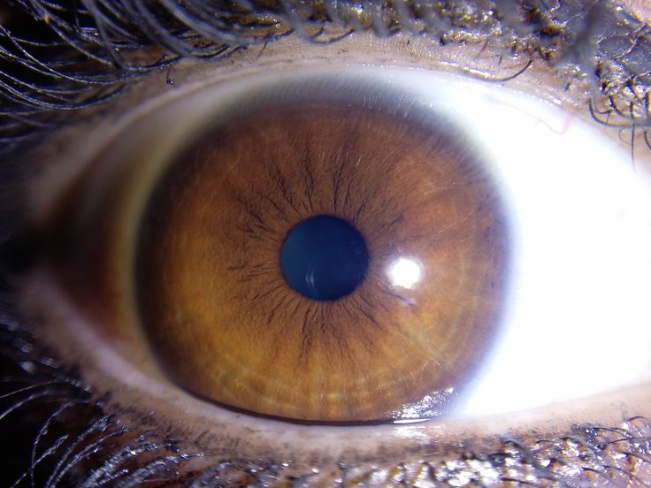 17 Best images about Iris patterns  Iridology on