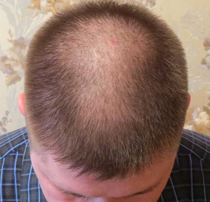 Hair Bumps On Scalp And Bald Spot Pictures To Pin On