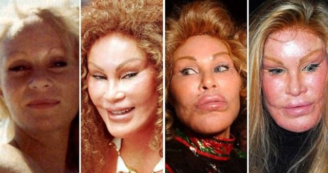 Image result for worst plastic surgery before and after photos