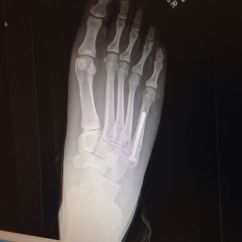 Height Of Kitchen Bench Cabinet Lights Jones Fracture | Pinterest